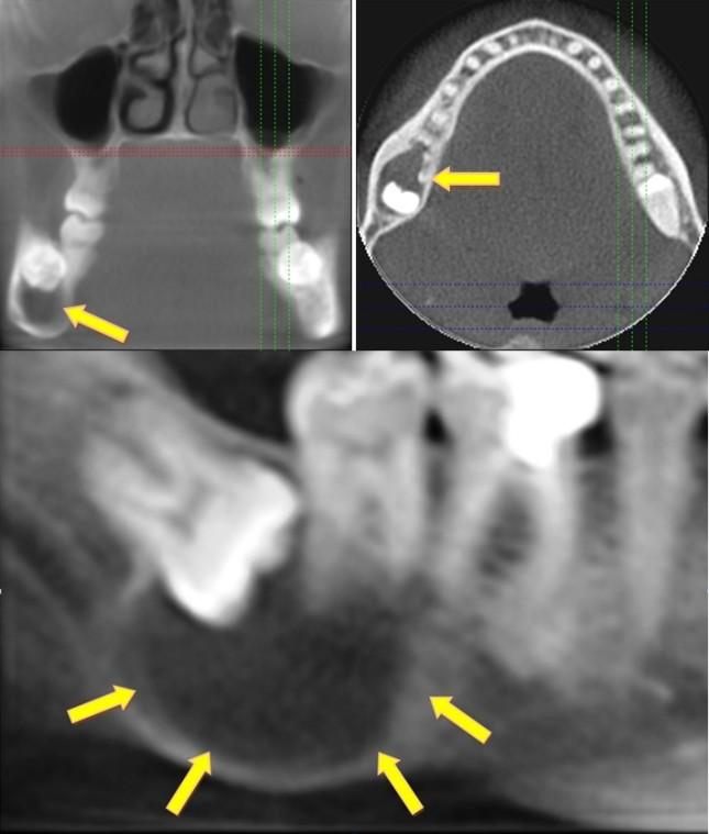 Stan zapalny w jamie ustnej może powodować groźne choroby odległych narządów (serca, nerek, stawów)..